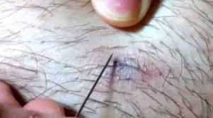 yellow puss filled ingrown hair ingrown hair cyst causes symptoms and best removal methods