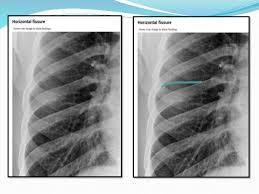Radiology Anatomy Radiological Anatomy Of Chest Including Lungs Mediastinum And Thoraci U2026