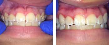 Comfort Dental Garland Before After Dental Image Gallery Garland Tx Smile Transformations