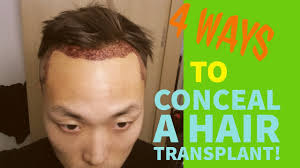 how thick is 1000 hair graft 4 ways to conceal hide a hair transplant youtube