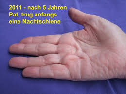 knoten handinnenfläche nadelfasziotomie pnf als therapie des morbus dupuytren