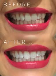 mr blanc teeth whitening review the cupid bow