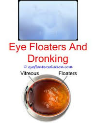 flashing lights in eye stroke seeing floaters in your eyes eye and cure