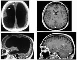 si e des motions dans le cerveau l homme sans cerveau l incroyable plasticité du cerveau