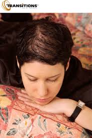 short hair styles for women with alopecia diffuse hair loss androgenetic alopecia trendy hairstyles in the usa