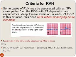 strain pattern ecg meaning podcheko alexey md upd fall hypertrophy enlargement of heart