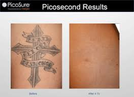 laser tattoo removal aftercare bepanthen 1000 geometric tattoos