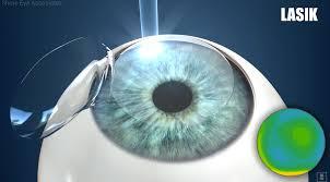 Lasik Long Island Cataract Surgery Shore Eye Eye Doctor Toms River Brick Spring Lake L