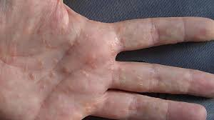 itchy bumps on hands that spread dyshidrotic eczema overview causes diagnosis pictures