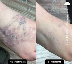 61 best before and after images on pinterest tattoo removal the