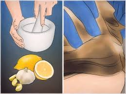 4 ways to get rid of lice with products at home wikihow