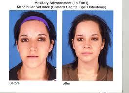 oral surgeon and maxillofacial surgeon free instant credit reports us