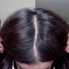 rogaine for women success stories what finally worked for me 27 androgenetic alopecia pics