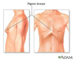 breast implants and chest abnormalities dr tarick smiley