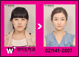 Meme Plastic Surgery - here s a few korean b a pictures from plastic surgery clinics