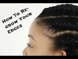 black cornrow hairstyles that cover edges three tips to revive those thinning edges third articles and