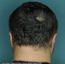 bandage hair shaped pattern baldness pill that can cure baldness in five months for alopecia sufferers