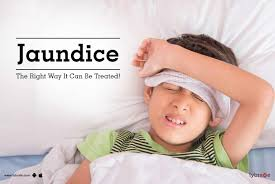 jaundice causes symptoms treatments and more
