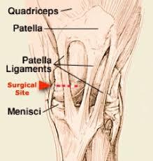 Lateral Patellar Ligament Aec Client Education Medial Patellar Desmotomy