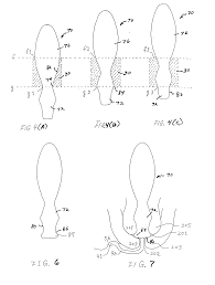 patent us20020040200 hemorrhoid treatment and prostate massage