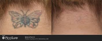 laser tattoo removal newcastle 4d skin cancer u0026 laser clinic
