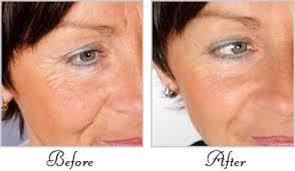 collagen red light therapy collagen red light anti aging bed tanlaagoura