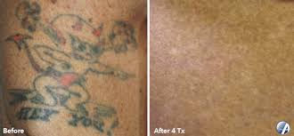 laser tattoo removal in lakeway texas astanza laser llc