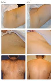 laser hair removal laser tattoo removal woodbury mn st paul mn