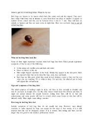 When Do Bed Bugs Bite How To Get Rid Of Bed Bug Bites