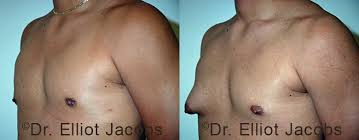 treatment of chest asymmetry