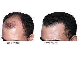 fut hong kong hair transplant faq alba reyes sagiv hair transplant institute