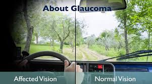 Halos Around Lights Glaucoma U2013 U201cthe Silent Thief Of Sight U201d Immunotherapy Nig Ltd