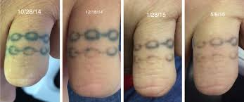 tattoo vanish healing about laser tattoo removal