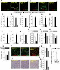 ace2 deficiency worsens epicardial adipose tissue inflammation and