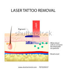 laser tattoo removal dark ink absorb stock vector 767028157