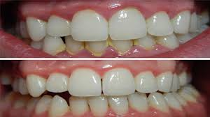 how to remove dental plaque in 5 minutes naturally without going