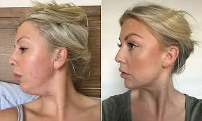 hairstyles for women with double chins how one woman finally got rid of her double chin daily mail online