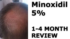 rogaine for women success stories minoxidil hair regrowth before after 1 4 months youtube