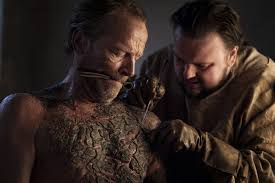 of thrones greyscale and the real history of leprosy time