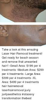Meme Hair Removal - take a look at this amazing laser hair removal treatment get ready