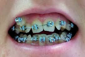 how to pick the best teal braces for your teeth