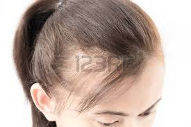 female recede hairline hairstyles with bangs receding hairline stock photos pictures royalty free receding