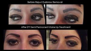 permanent makeup removal before and after style guru fashion