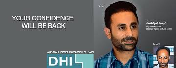 dhi hair transplant reviews top 10 hair transplant clinic in malaysia blog review toppik