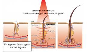 Laser Hair Growth Hat Lush Aesthetics Singapore Aesthetics Centre Coolsculpting