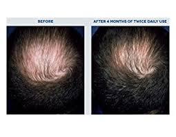 rogaine for women success stories amazon com men s rogaine hair loss hair regrowth treatment