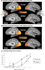 Cortical Blindness May Result From The Destruction Of Canine And Human Visual Cortex Intact And Responsive Despite Early