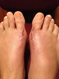 Comfortable Shoes After Foot Surgery 176 Best Feet Care Images On Pinterest Feet Care Foot Soaks And