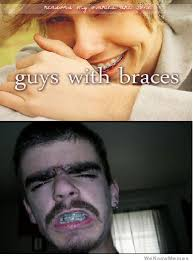 Braces Memes - best of the things boys do we love meme weknowmemes