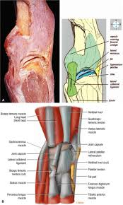 Lateral Patellar Ligament The Knee Musculoskeletal Key